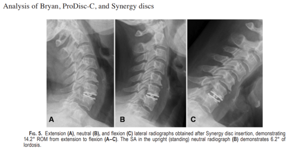 Lazaro, et al. Effect of arthroplasty design on cervical spine kinematics: analysis of the Bryan Disc, ProDisc-C, and Synergy Disc.  Neurosurg Focus 28(6):  E6, 2010.