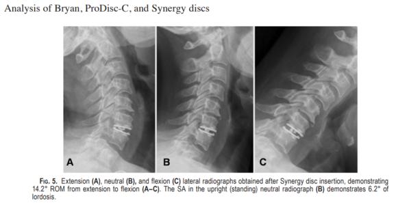 Lazaro, et al. Effect of arthroplasty design on cervical spine kinematics: analysis of the Bryan Disc, ProDisc-C, and Synergy Disc.  Neurosurg Focus 28(6):  E6, 2010.