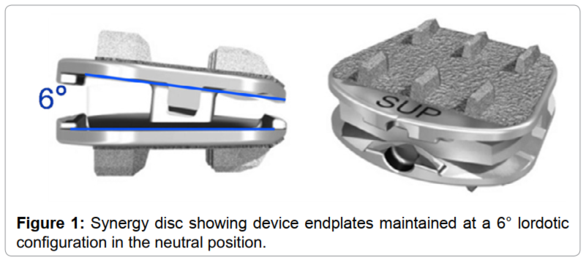 Yucesoy, et al. Changes in Sagittal Alignment after Cervical Disc Arthroplasty: Results of a Pilot Study. Journal of Spine 5:1, 2016.