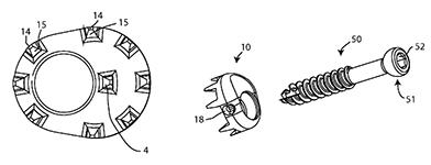 US Patent 9,414,865